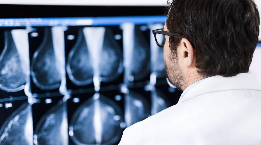 نوروفیبروماتوز و سرطان پستان